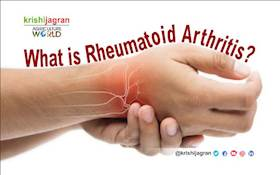 Rheumatoid Arthritis: Early Signs, Symptoms & Treatment