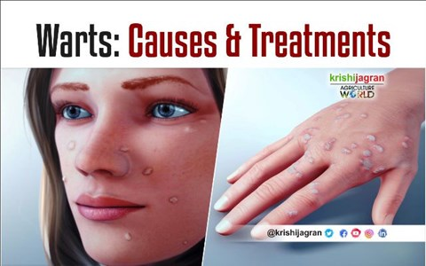 What are Warts: Know its Types, Causes & Treatments